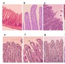 Oral infection ecoli