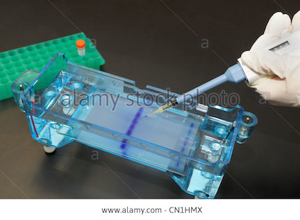 gel-electrophoresis-dna-samples-being-loaded-by-micropipet-into-the-CN1HMX